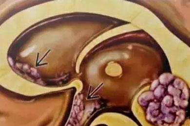 认识儿童颅内生殖细胞肿瘤